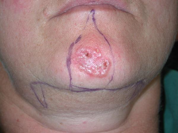 Die Hämorrhoide nach legirowanije